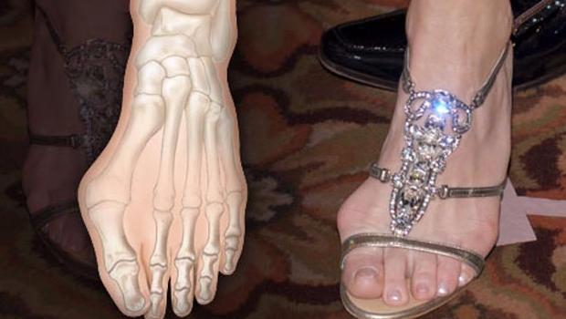 uso de zapatillas provoca deformaciones en los pies para comentarse